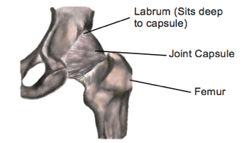 Hip Pain and Labral Tears