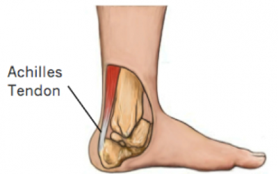 A focus on… Achilles Tendon Tears