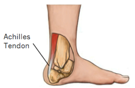 Achilles Tendon Tears
