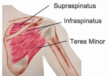 A focus on… Rotator Cuff Tears