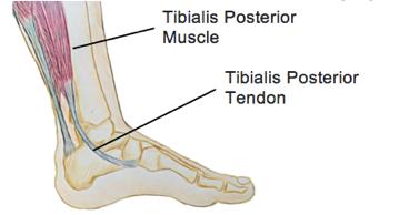 A focus on… Tibialis Posterior Tendinopathy