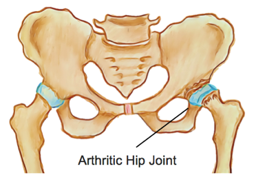 OA of the Hip